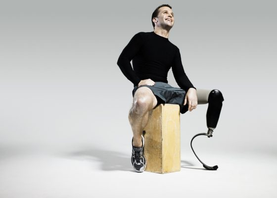 Athlete with prosthetic leg Sitting on a piece of wood as an example for the use of micropumps in medical technology